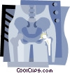 hip replacement Vector Clipart picture