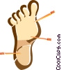 Vector Clipart picture  of an acupuncture