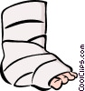 Vector Clipart image  of a broken ankle