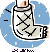 Vector Clipart illustration  of a broken foot in a cast