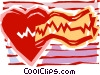 Vector Clipart graphic  of a Electro cardio gram